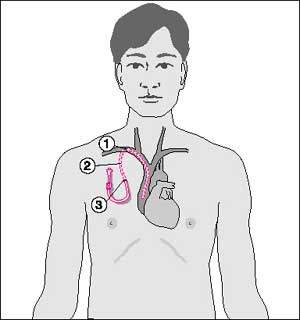 inseration of drug into the body cavity